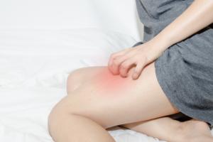 【医師監修】産後のつらい蕁麻疹の治し方。授乳中は?かゆみはいつまで?