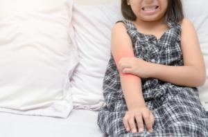 子どものとびひが治らない!原因は?早く治す方法と重症化のキケン|医師監修