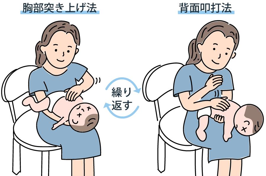 母乳 肺炎 赤ちゃん むせる