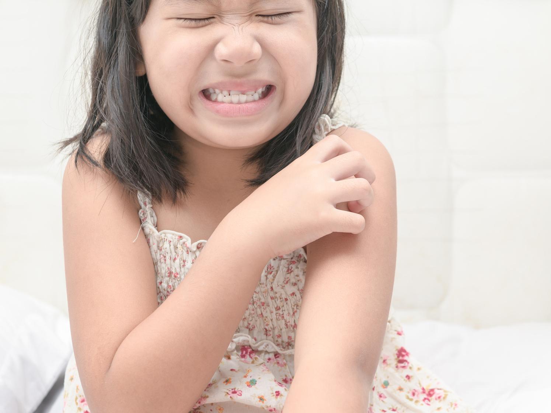 小学生の水疱瘡