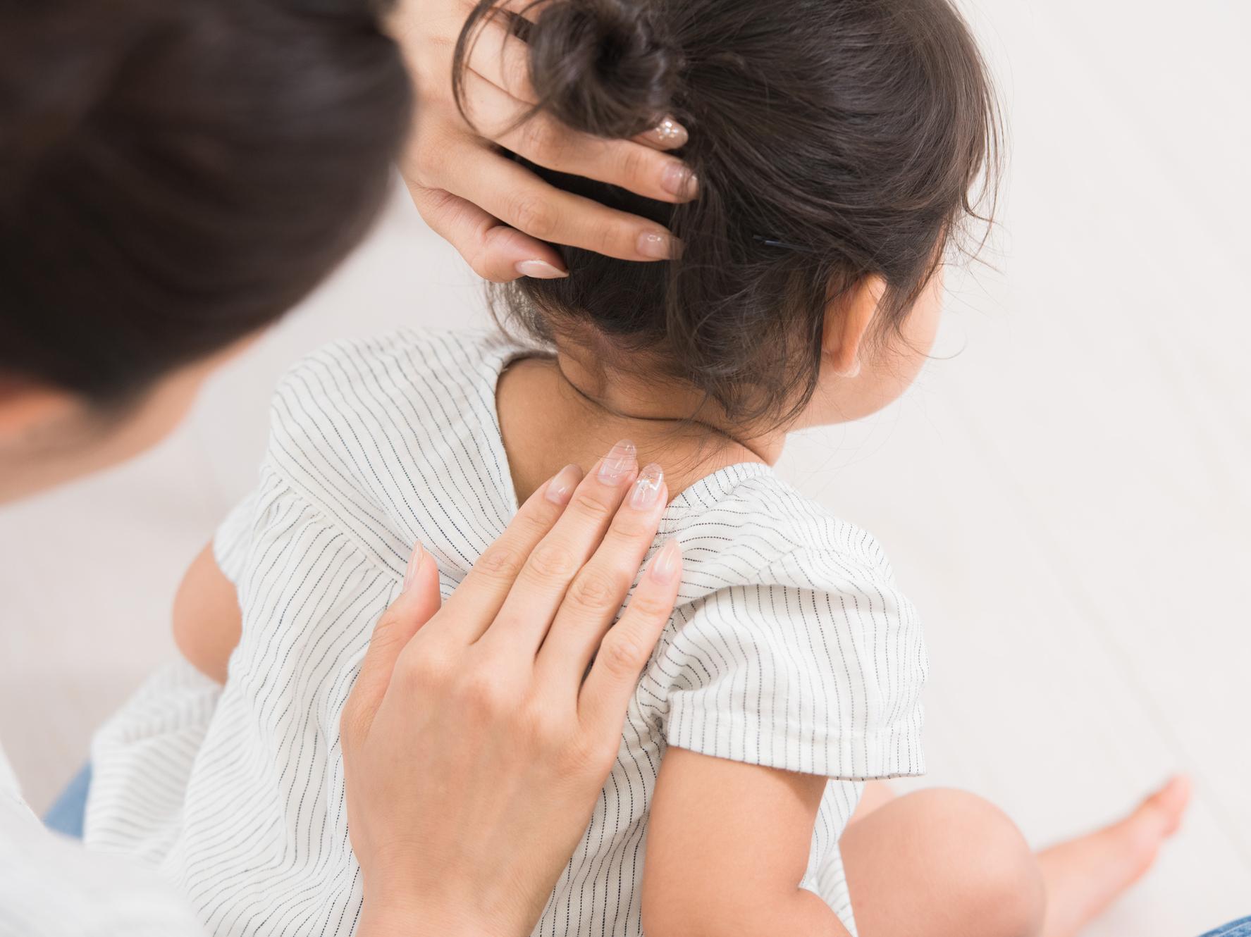子どもの季節の変わり目湿疹