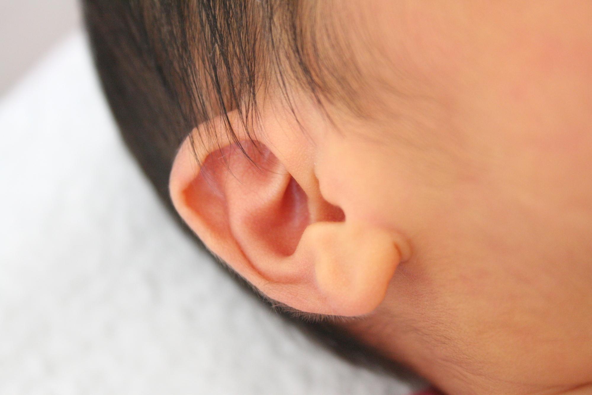 なぜ?赤ちゃん・子どもの「耳が臭い」4つの原因。耳垂れ・納豆臭も