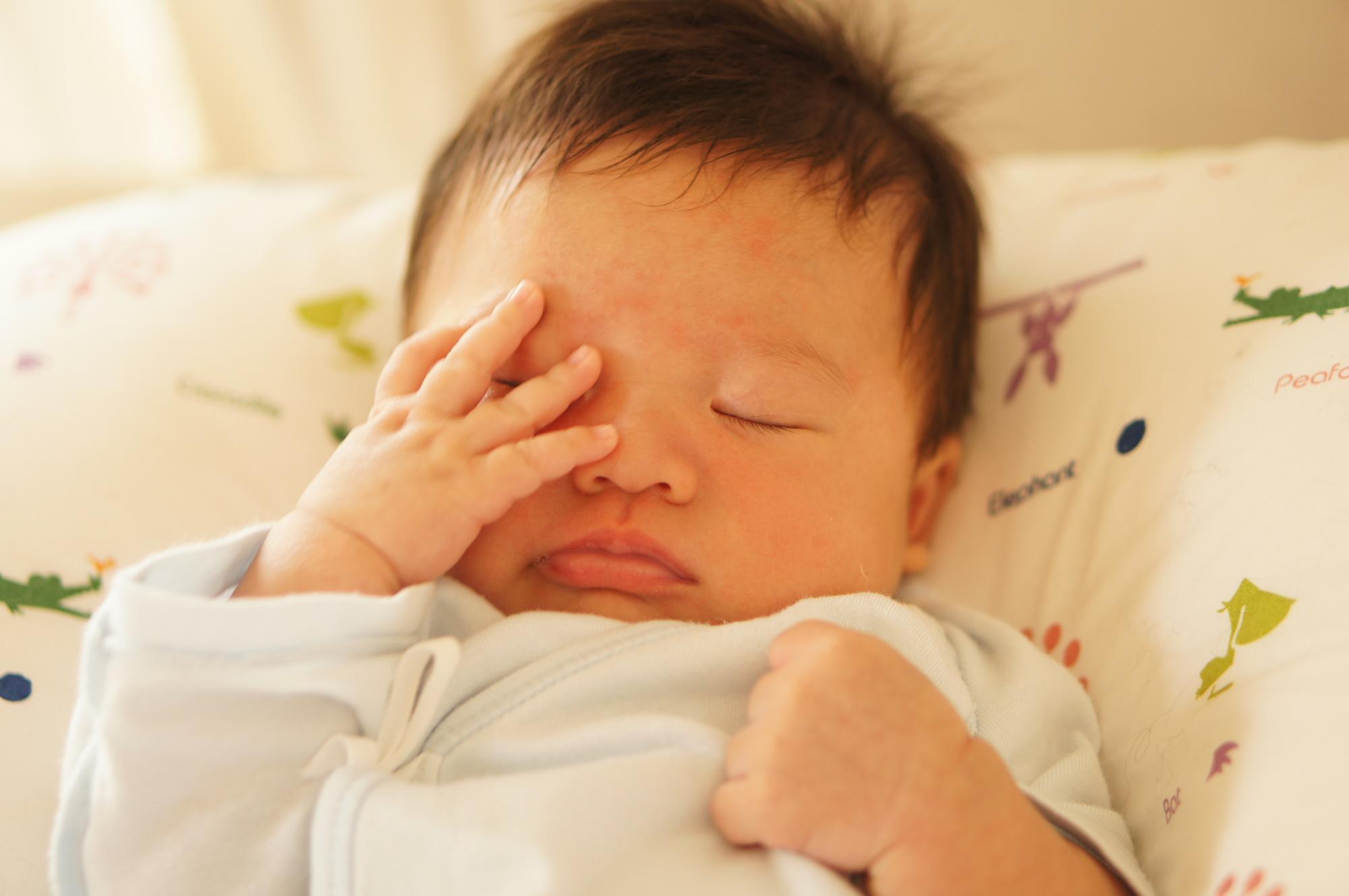 赤ちゃんの目の周りが赤い。治し方は?病院は何科?こする・すぐ消えるときは【医師監修】