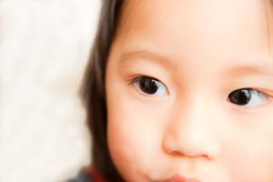 子どもの結膜炎の症状と治し方。保育園は?市販の目薬はOK?│医師監修