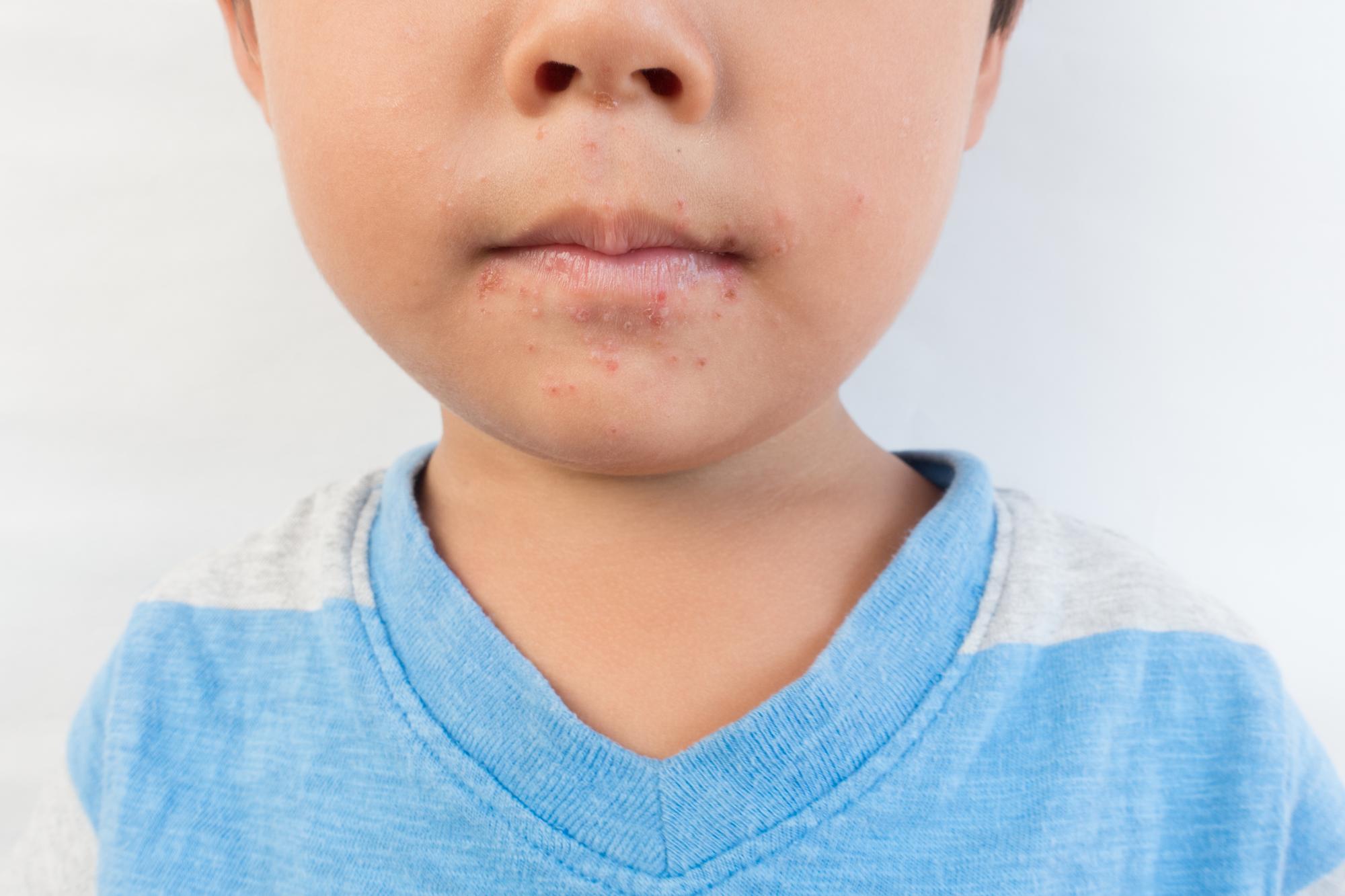 手足口病の初期症状