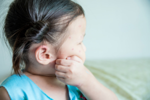 水疱瘡の初期症状|熱と発疹、もしかして…?早く治す方法と受診目安【医師監修】