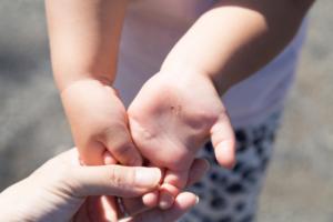 子どもが手首を痛がる!肘内障かも。病院行くべき?何科に行く?【医師監修】