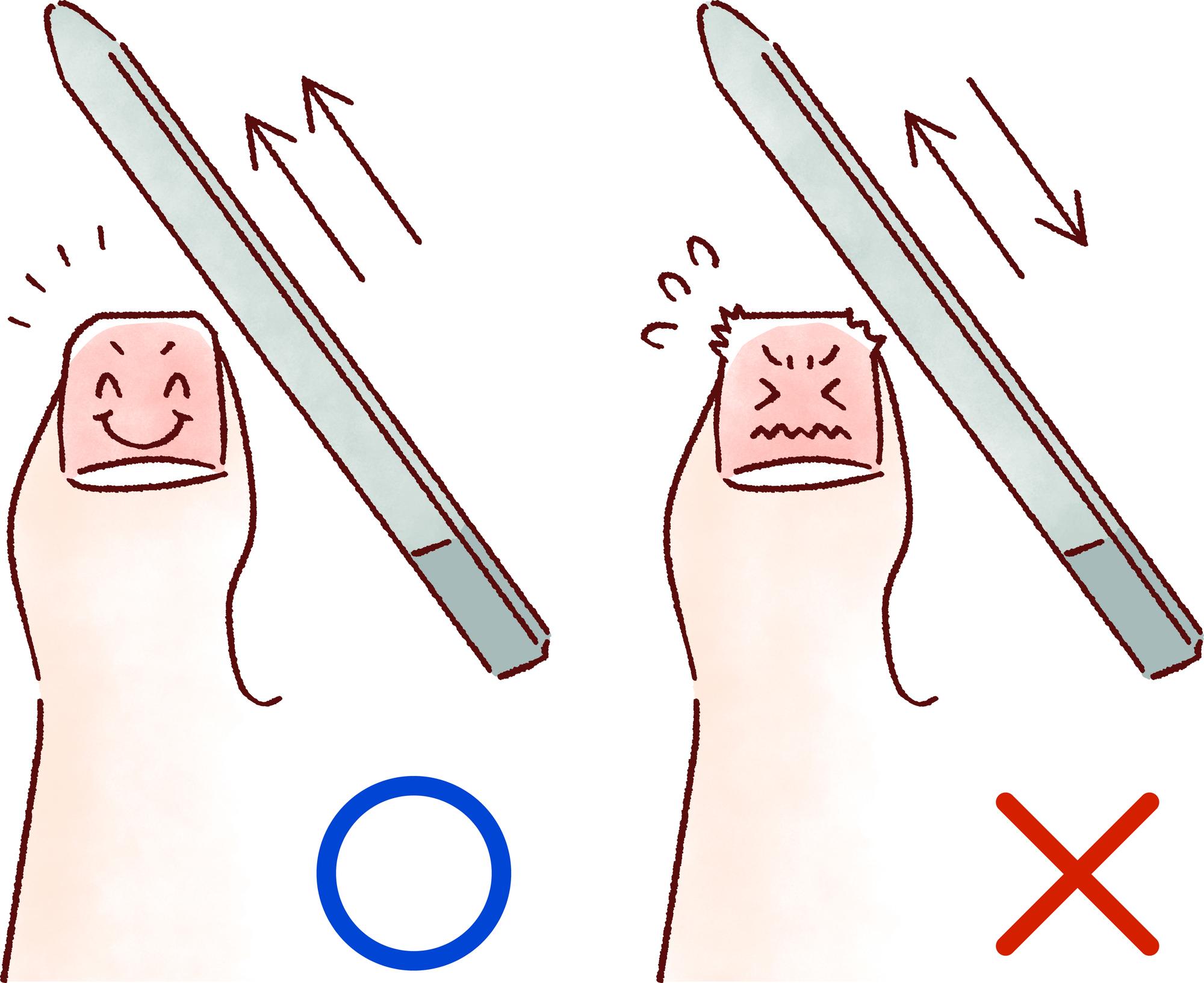 子供 巻き爪