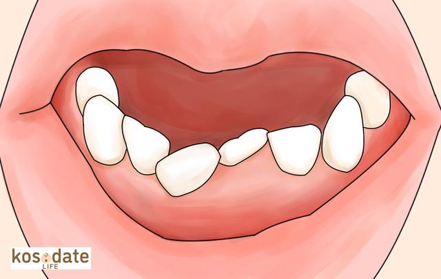 下の歯 斜め