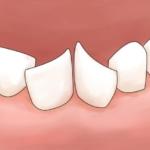 下の永久歯の生え方「斜め」「ハの字」は自然に治る?矯正した方がいい?|歯科医監修