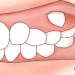 子どもの「永久歯が変なところから生えてきた」自然に治る?矯正した方がいい?|歯科医監修