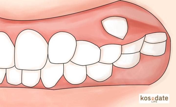 子どもの「永久歯が変なところから生えてきた」自然に治る?矯正した方がいい? 歯科医監修