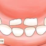 下の歯・上の歯「永久歯が乳歯の内側から生える」どうすれば? 歯科医監修