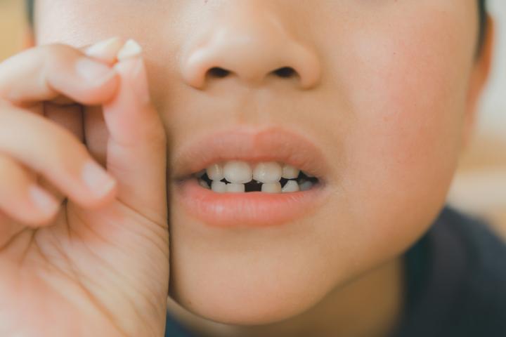 乳歯の根っこが残る「きれいに抜けなかった」ときの対処法【歯科医監修】