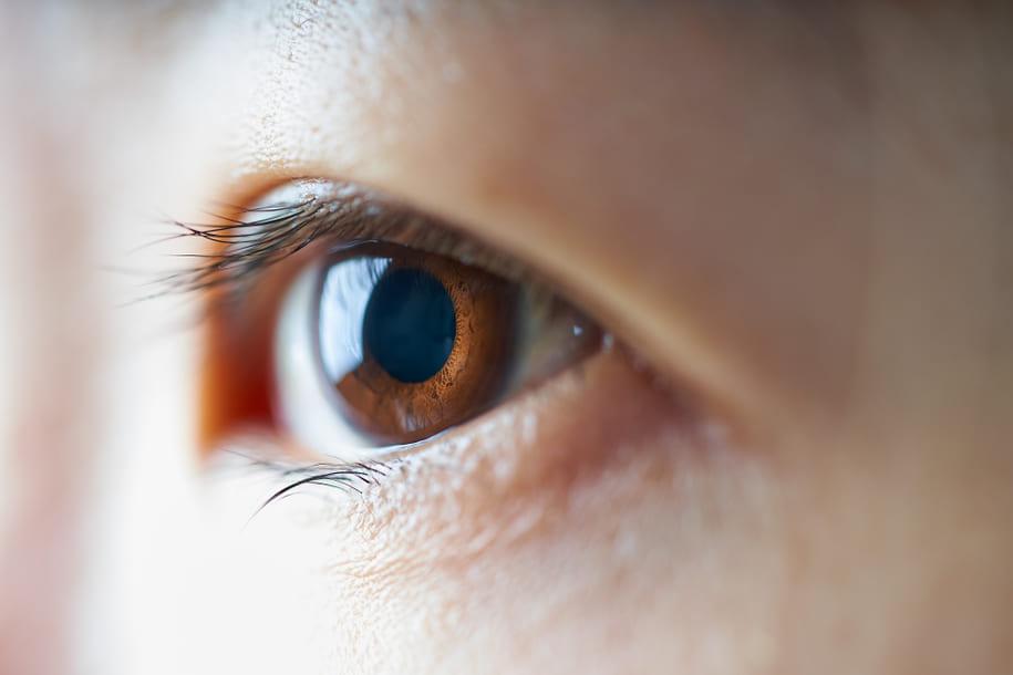 角膜ジストロフィー