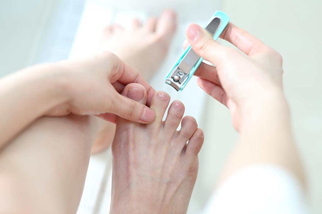 巻き爪の病院治療 何科?保険適用?ズキズキ痛いときの対処法
