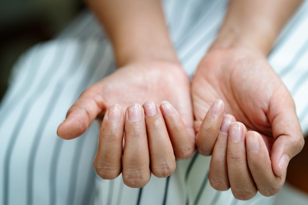【放置NG】手のひらに赤い斑点!肝臓が悪いサイン「手掌紅斑」かも