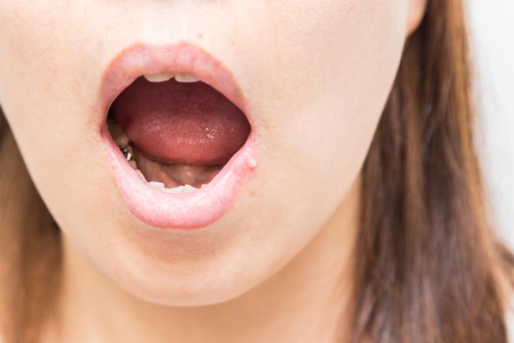 舌 が ヒリヒリ する
