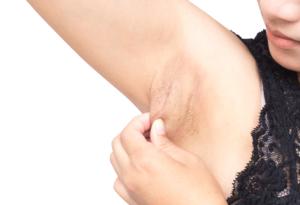 脇の下に「柔らかい腫れ」…これ大丈夫?痛い/痛くない原因は?病院は何科?