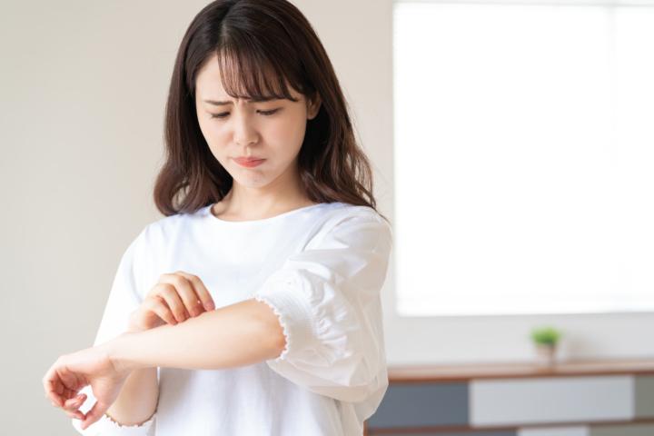 蕁麻疹 アレルギー