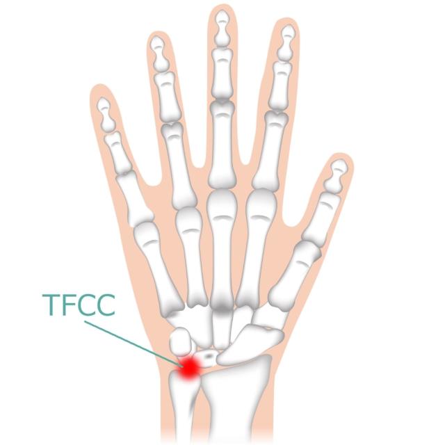 手首 痛い 小指側