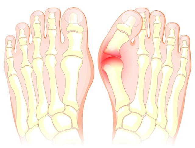 外反母趾 手術