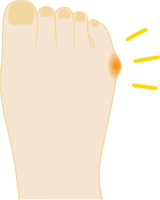 足の小指側が痛い