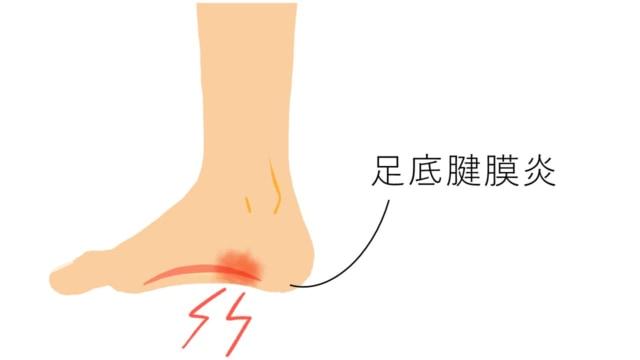 しこり 土踏まず 足の裏にできもの!痛くない場合・痛い場合の原因&子供に多いのは?